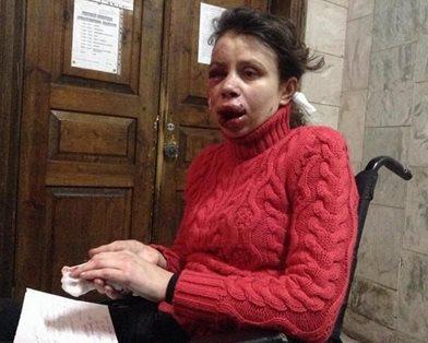 Journalisten Tetjana Tsjernovol ble mishandlet av voldsmenn i desember. Hun leder nå antikorrupsjonsetaten. (foto: Iryna Solomko)