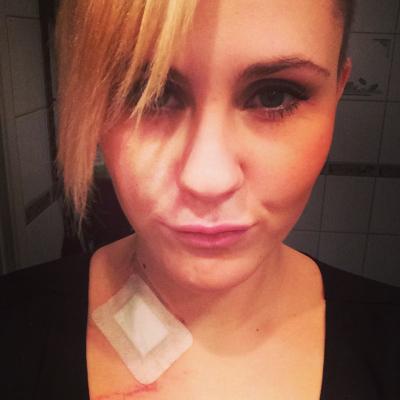 Mariell Erdal Hansen bloggar og legg ut foto om kreftsjukdommen og behandlinga (foto: fightingcancer.blogg.no)
